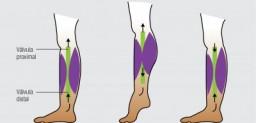 Salud y cuidados de las piernas