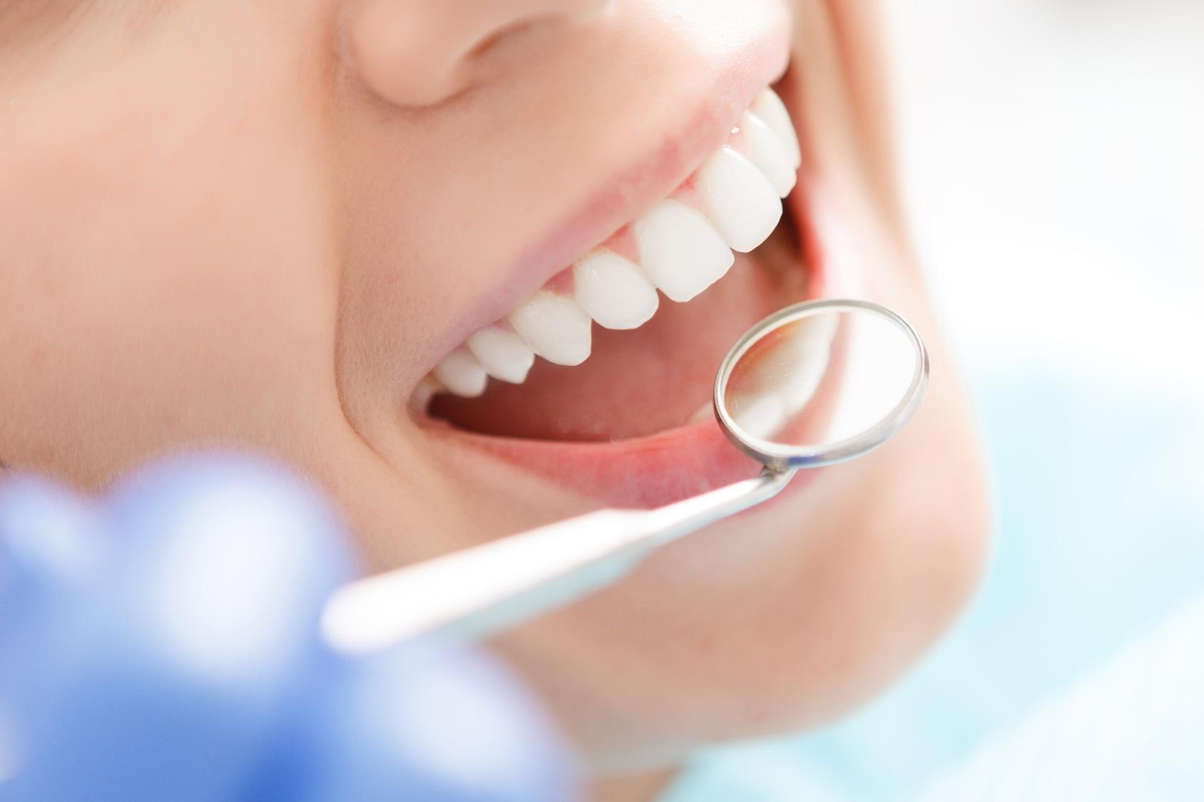 ¿Cómo actuar ante la gingivitis?