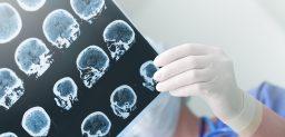 ¿La epilepsia se puede curar?