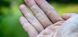 ¿Qué síntomas provoca la dishidrosis?