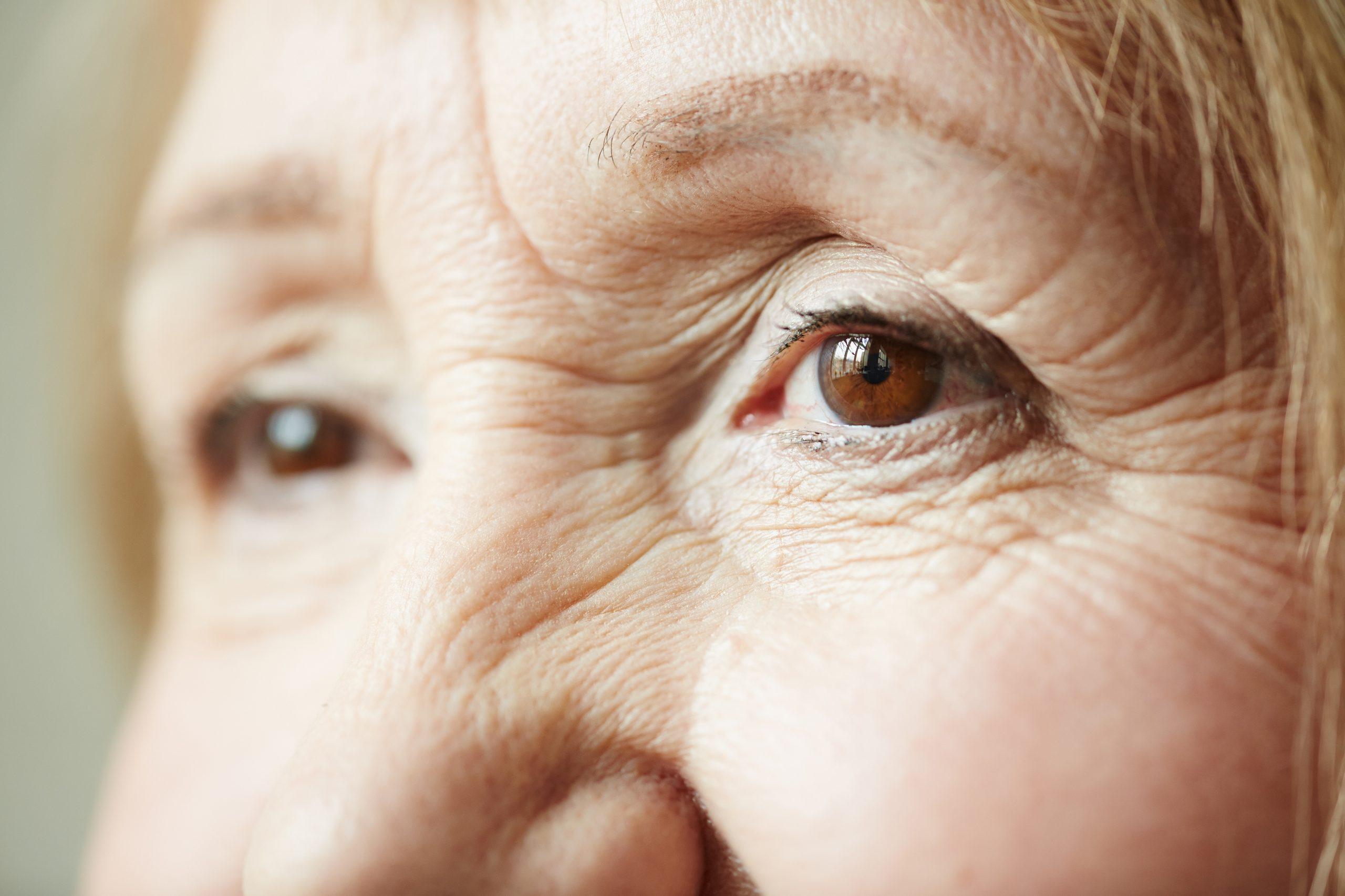 infección ocular por bronquitis