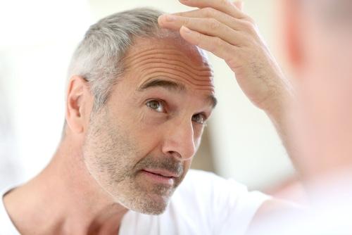 ¿La alopecia se puede frenar?