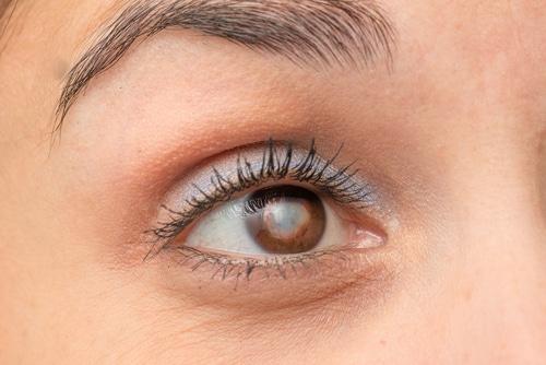 Ver borroso de un ojo