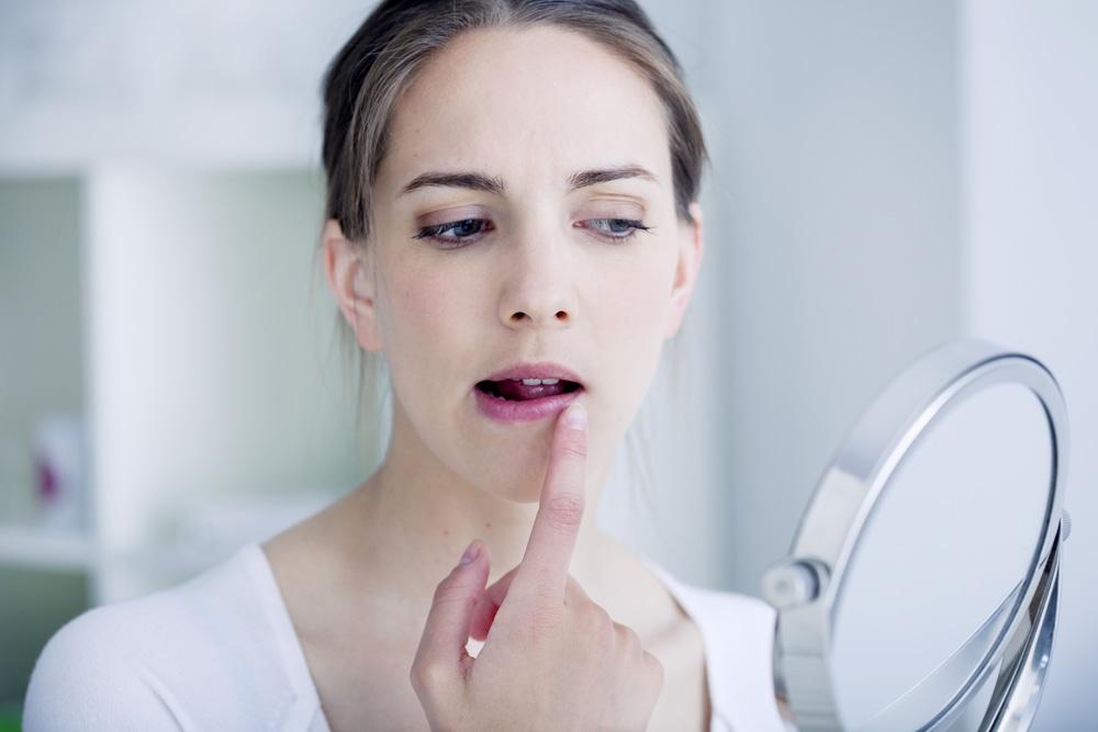 El virus del herpes labial continúa latente en el organismo.
