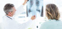 El cáncer de pulmón es uno de los más comunes