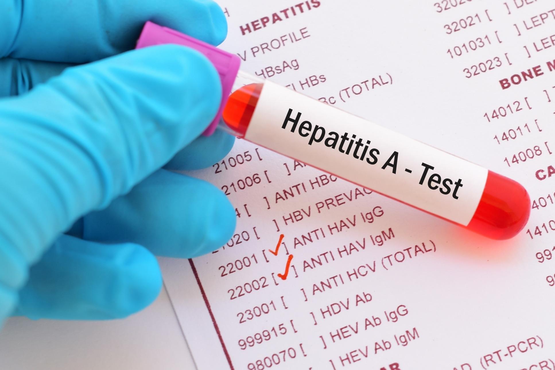 La hepatitis A no se convierte en una enfermedad crónica.