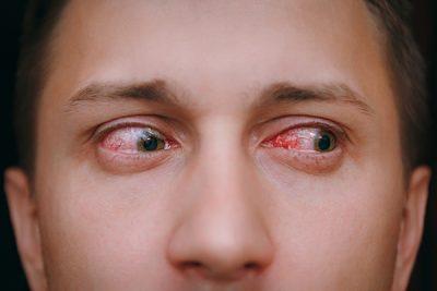 La conjuntivitis puede ser vírica o bacteriana.