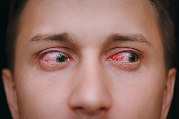infecciones externas del ojo