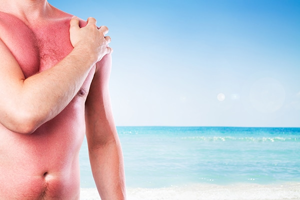 Sintomas del cancer de piel fotos