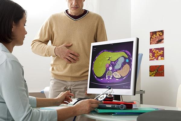 Enfermedad de Crohn: síntomas, causas y riesgos | CinfaSalud