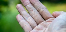 ¿Qué síntomas provoca la dishidrosis? CinfaSalud