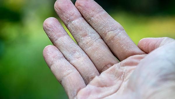 Qué es la dishidrosis palmar y plantar o eczema dishidrótico