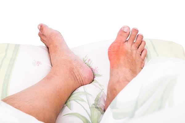 micción frecuente e hinchazón de los pies