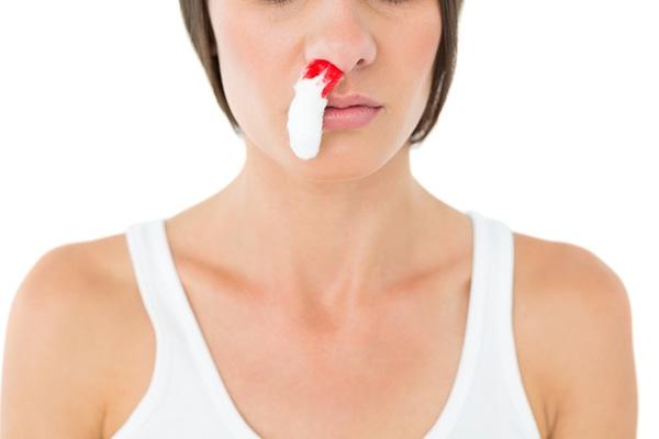 ¿Qué hacer ante una hemorragia nasal? CinfaSalud