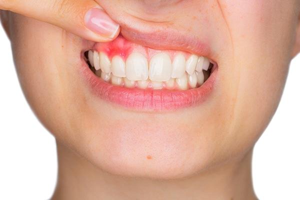 Tratamiento de un paciente con periodontitis cronica