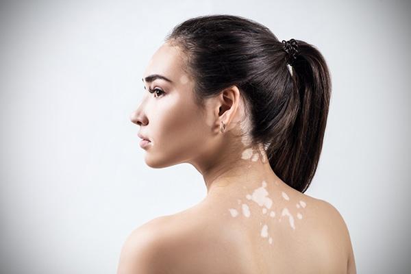 vitiligo en la cara tratamiento