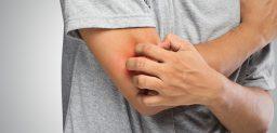 ¿Qué síntomas produce la urticaria?