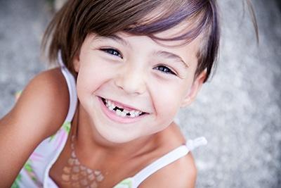En torno a los 6 años, los dientes de leche comienzan a caerse.