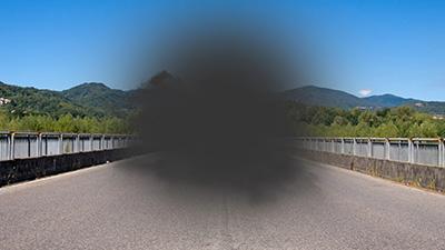 La DMAE suele asociarse a una pérdida de la visión central.