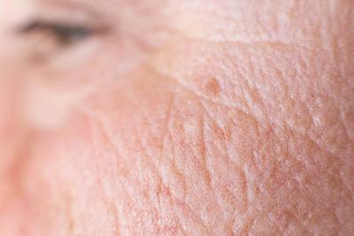 Uno de los síntomas del fotoenvejecimiento son las arrugas gruesas.