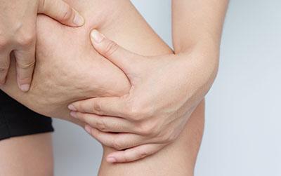 La celulitis suele aparecer en muslos, glúteos o abdomen,